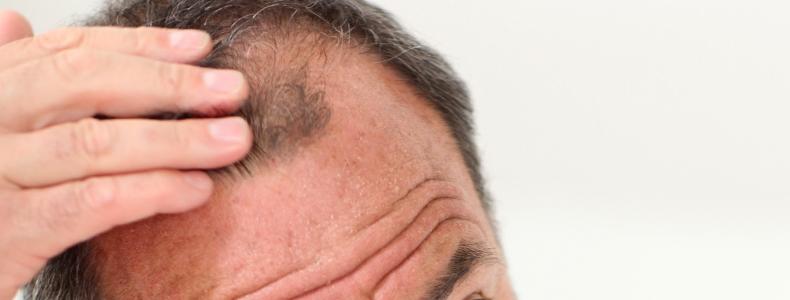 Saç Sıklığı