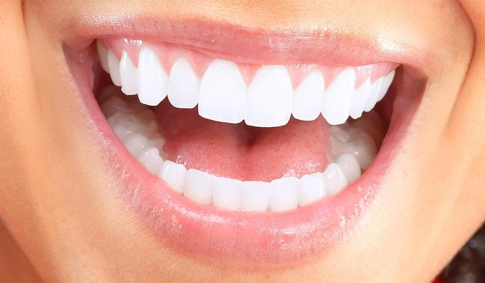 Gummy Smile (Dişeti Gülüşü) Tedavisi